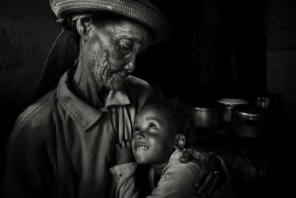 Erken yaşlanmanın başlıca nedenleri